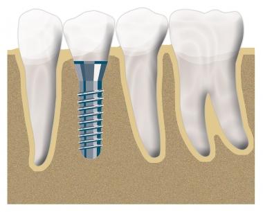 Implantat Position