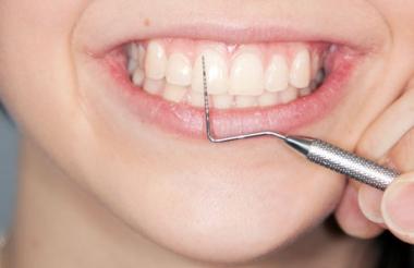 Initialtherapie Parodontalerkrankung