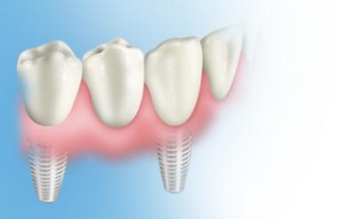 Implantat Teilbezahnung